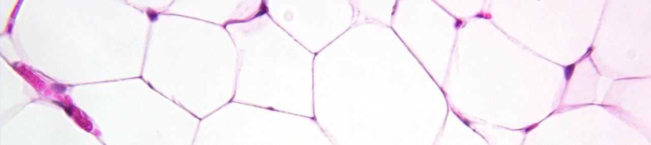 Histologia - Tecido adiposo branco unilocular